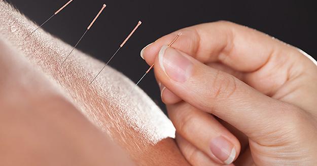 Akupunktur bei Allergien und Migräne einsetzen.
